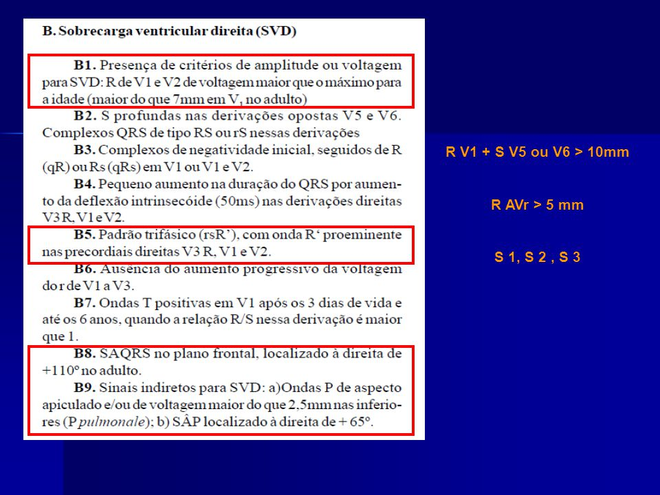 R V1 + S V5 ou V6 > 10mm R AVr > 5 mm S 1, S 2 , S 3