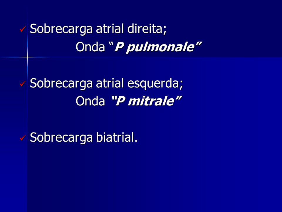 Sobrecarga atrial direita;