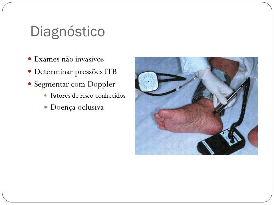 Diagnóstico Exames não invasivos Determinar pressões ITB