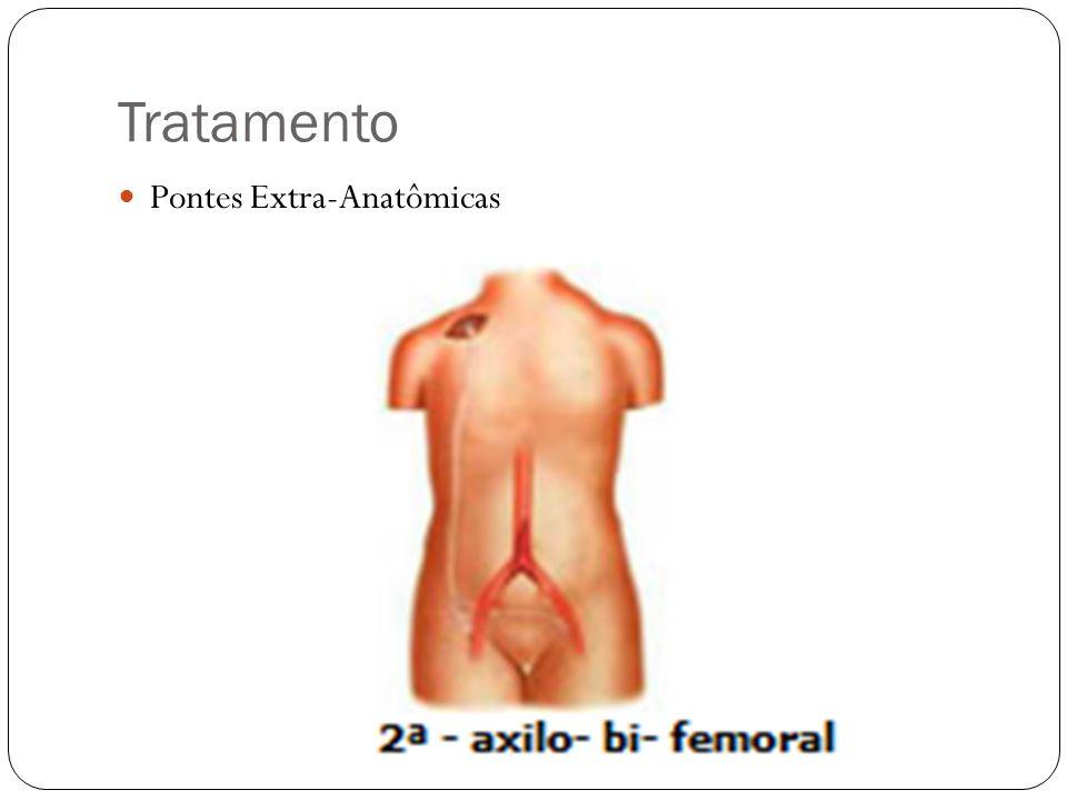 Tratamento Pontes Extra-Anatômicas