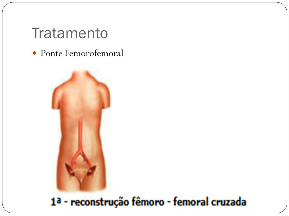 Tratamento Ponte Femorofemoral