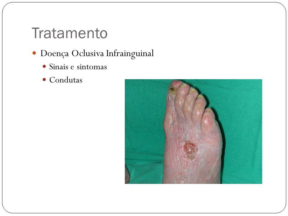 Tratamento Doença Oclusiva Infrainguinal Sinais e sintomas Condutas