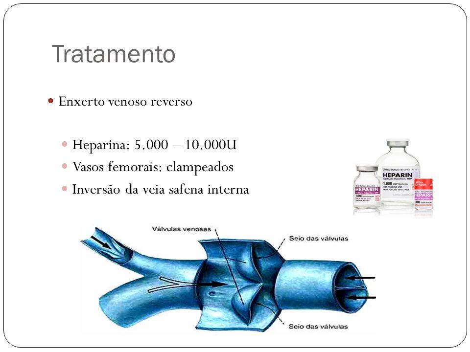 Tratamento Heparina: 5.000 – 10.000U Vasos femorais: clampeados
