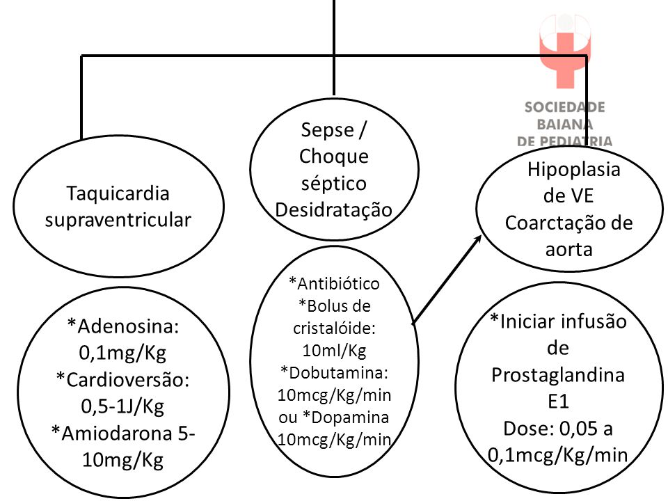 Taquicardia supraventricular Hipoplasia de VE Coarctação de aorta