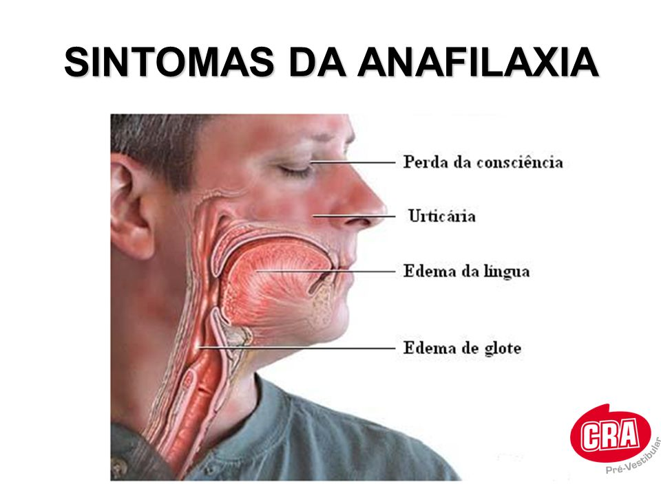 SINTOMAS DA ANAFILAXIA