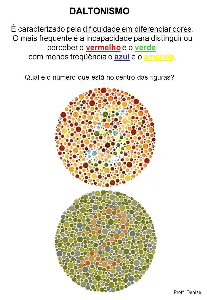 DALTONISMO É caracterizado pela dificuldade em diferenciar cores.
