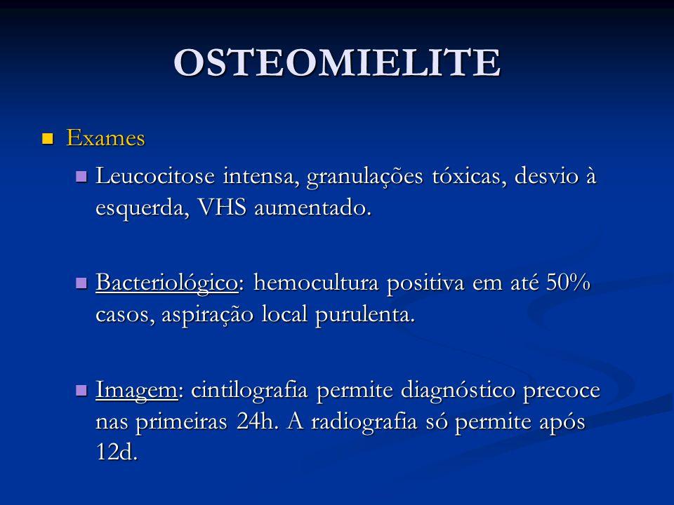 OSTEOMIELITE Exames. Leucocitose intensa, granulações tóxicas, desvio à esquerda, VHS aumentado.