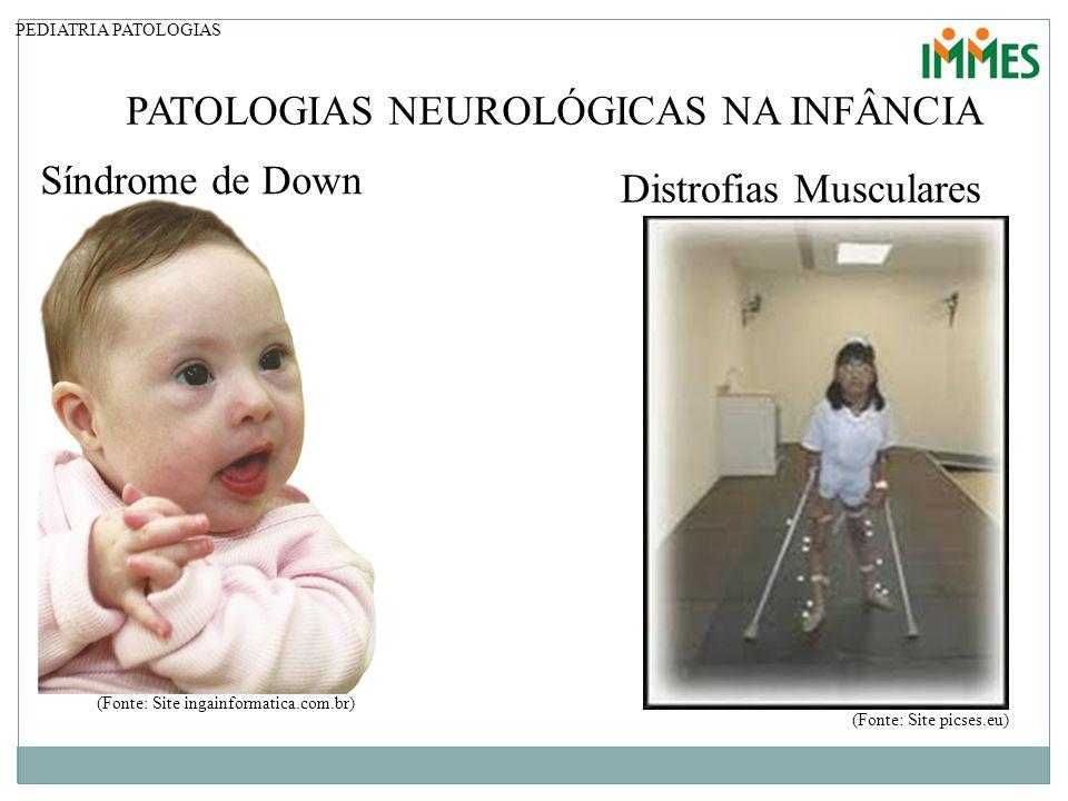 PATOLOGIAS NEUROLÓGICAS NA INFÂNCIA