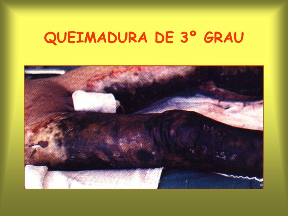 QUEIMADURA DE 3º GRAU