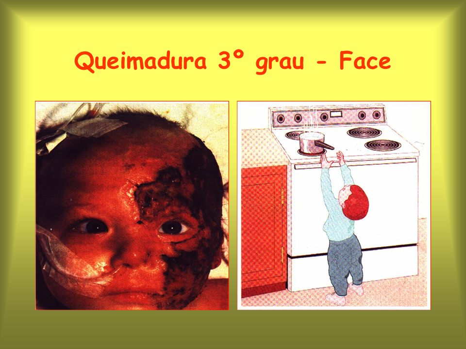 Queimadura 3º grau - Face