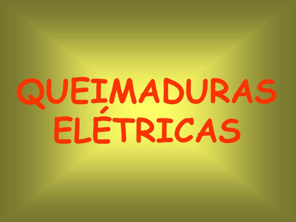 QUEIMADURAS ELÉTRICAS