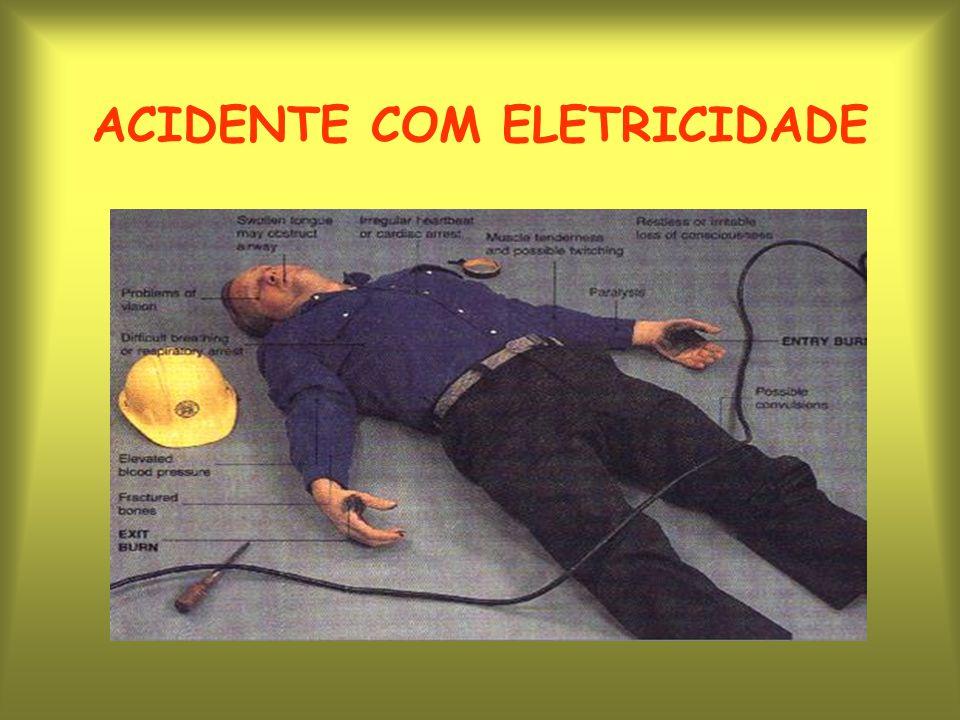 ACIDENTE COM ELETRICIDADE