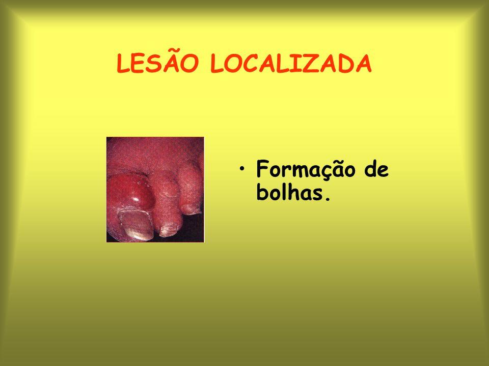 LESÃO LOCALIZADA Formação de bolhas.