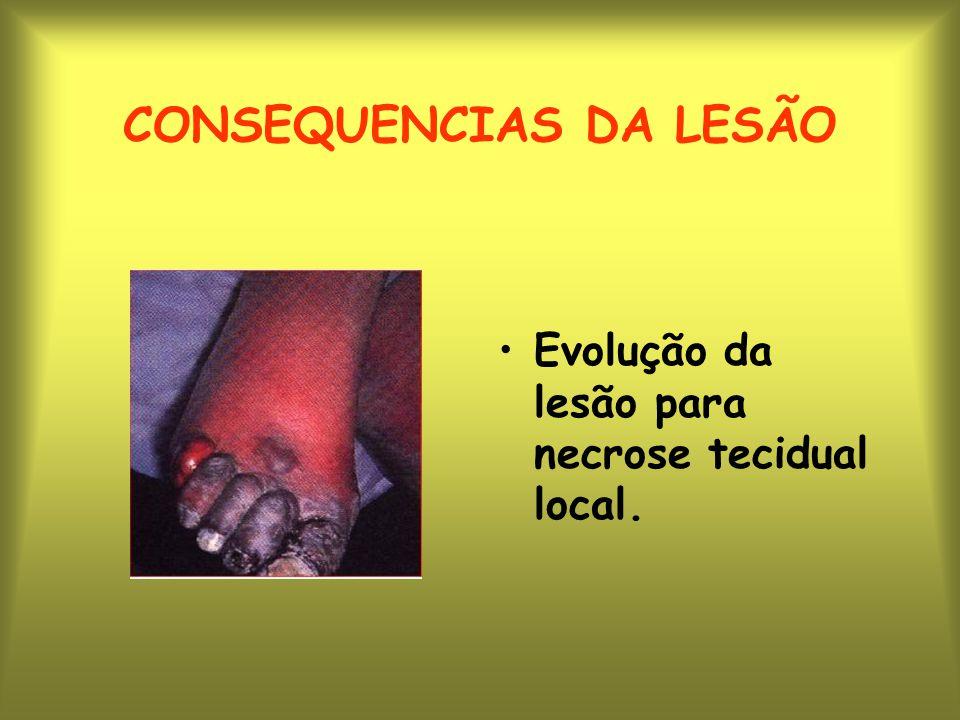 CONSEQUENCIAS DA LESÃO
