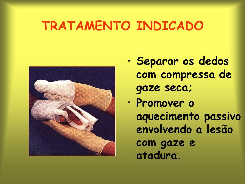 TRATAMENTO INDICADO Separar os dedos com compressa de gaze seca;