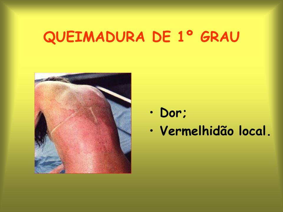 QUEIMADURA DE 1º GRAU Dor; Vermelhidão local.