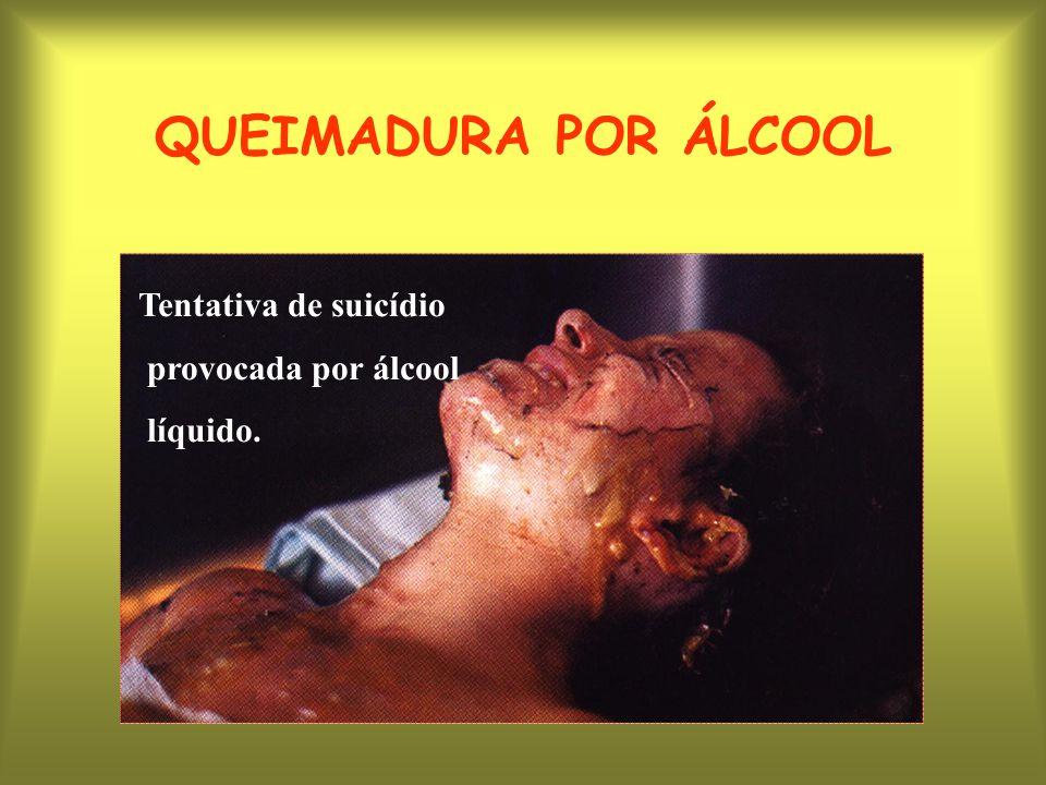 QUEIMADURA POR ÁLCOOL Tentativa de suicídio provocada por álcool