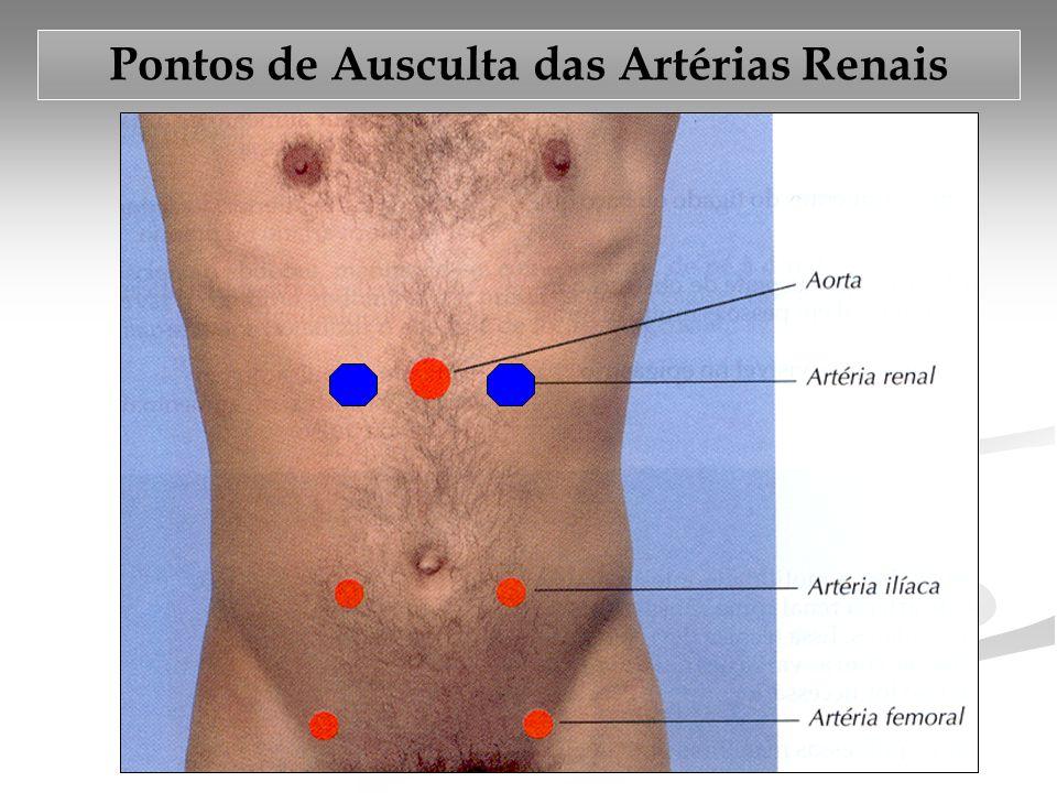 Pontos de Ausculta das Artérias Renais