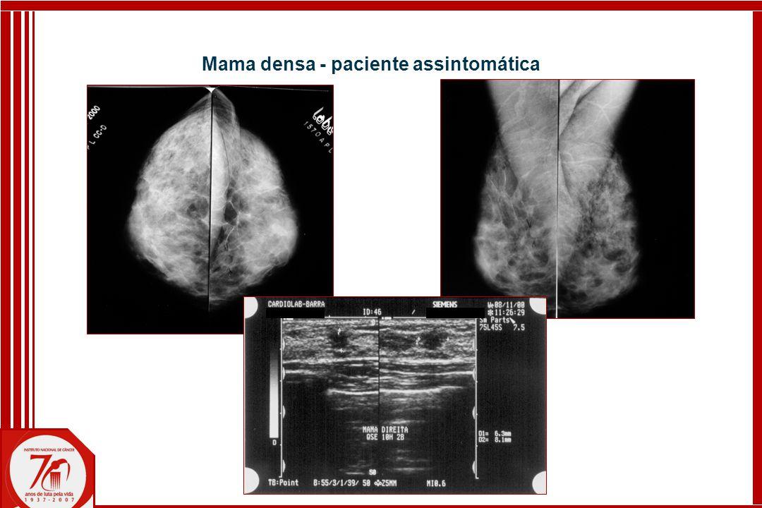 Mama densa - paciente assintomática