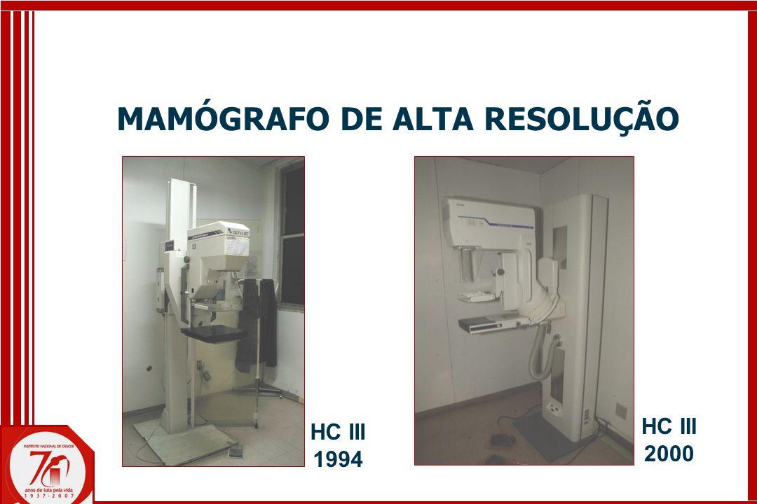 MAMÓGRAFO DE ALTA RESOLUÇÃO