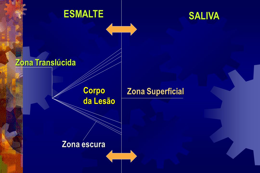 ESMALTE SALIVA Zona Translúcida Corpo Zona Superficial da Lesão