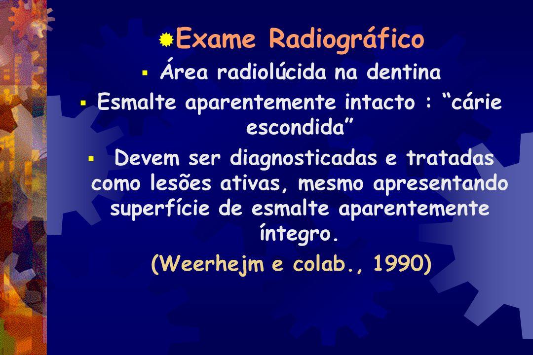 Exame Radiográfico Área radiolúcida na dentina