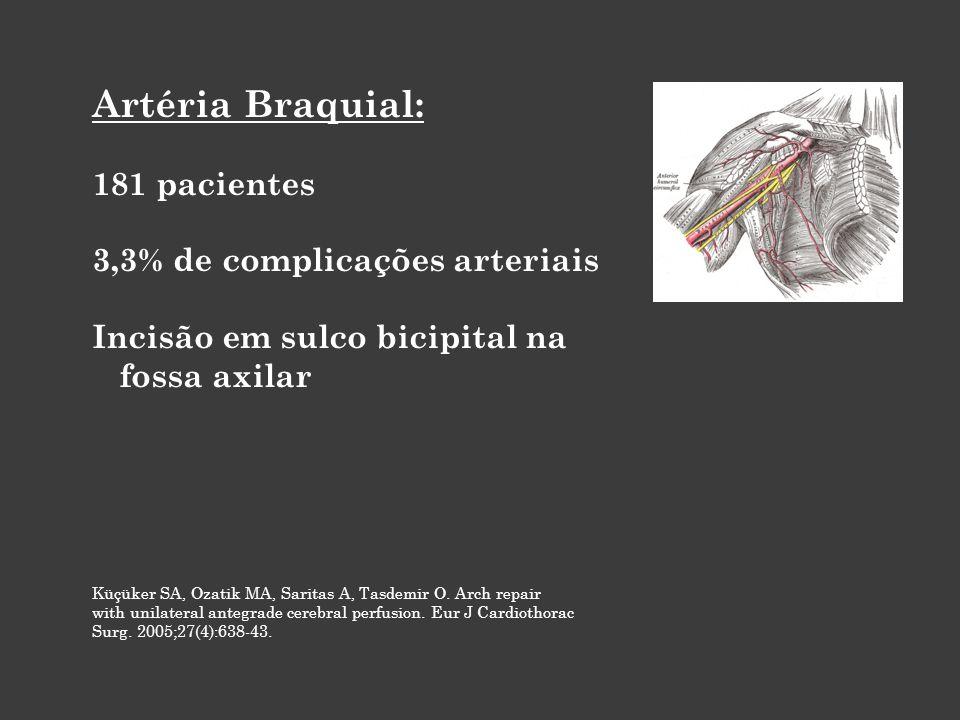 Artéria Braquial: 181 pacientes 3,3% de complicações arteriais