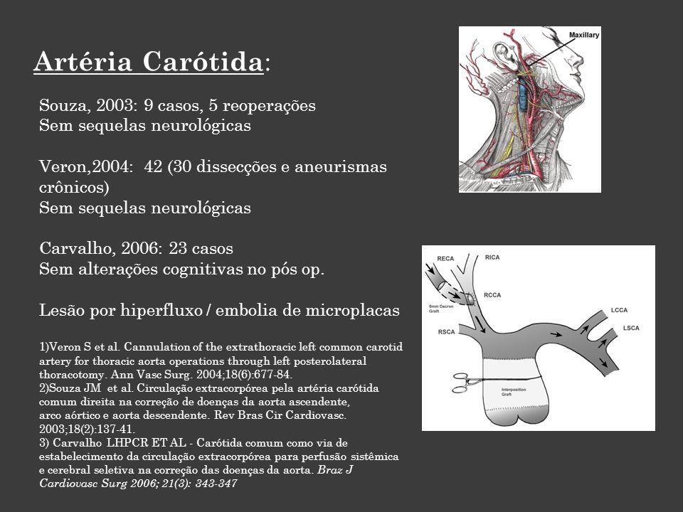 Artéria Carótida: Souza, 2003: 9 casos, 5 reoperações