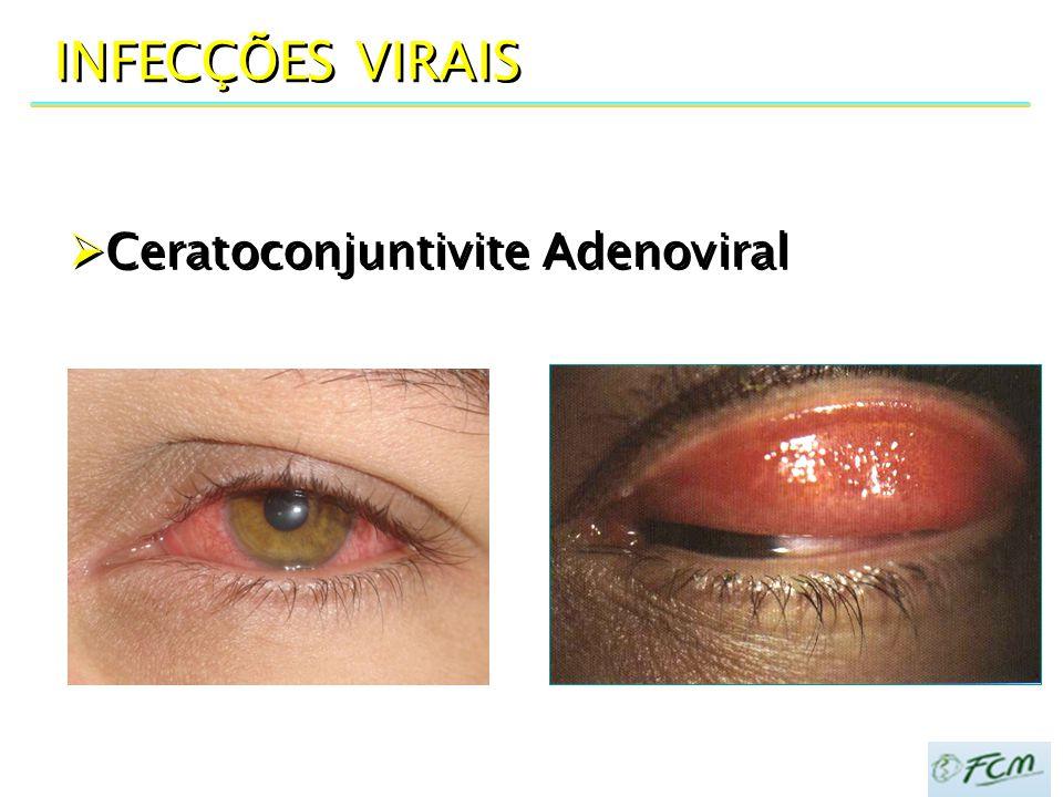 INFECÇÕES VIRAIS Ceratoconjuntivite Adenoviral