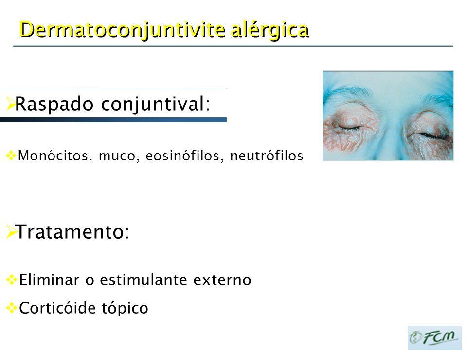 Dermatoconjuntivite alérgica