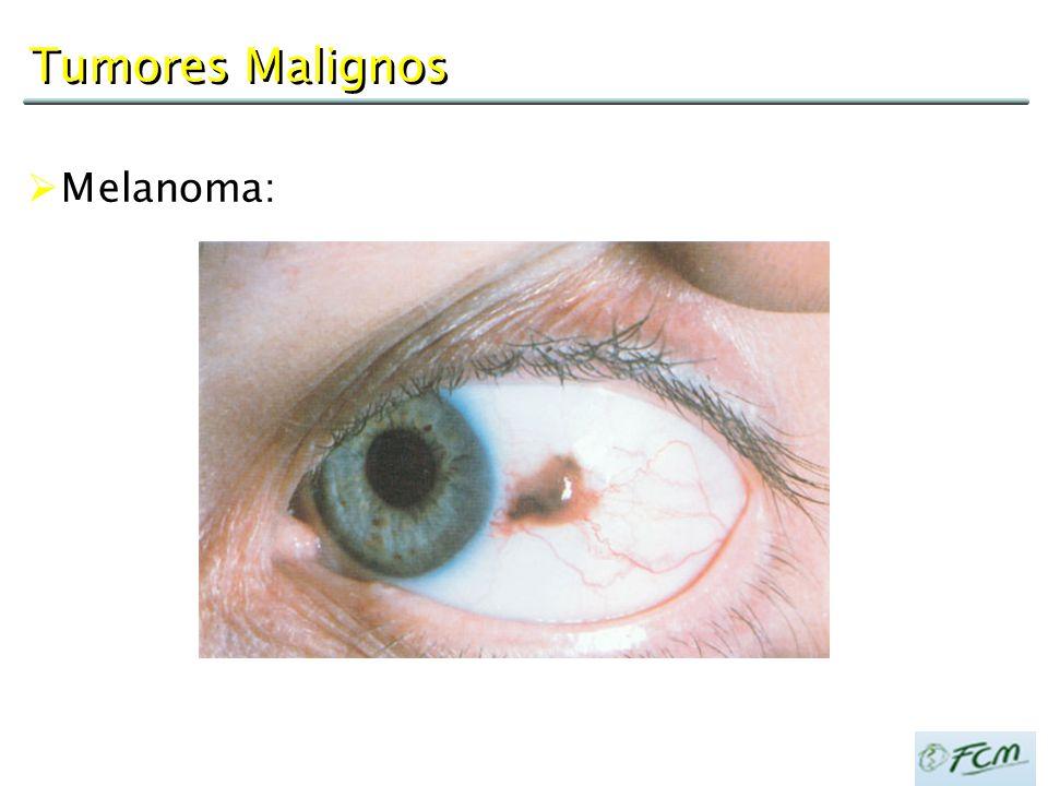 Tumores Malignos Melanoma: