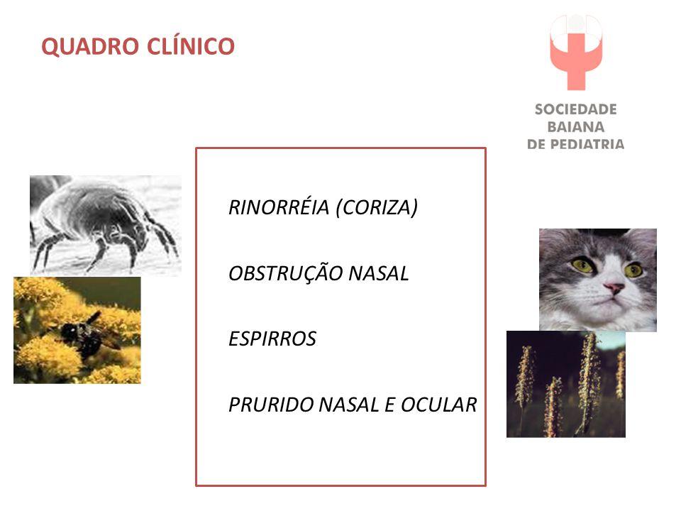 QUADRO CLÍNICO Rinorréia (coriza) Obstrução nasal Espirros