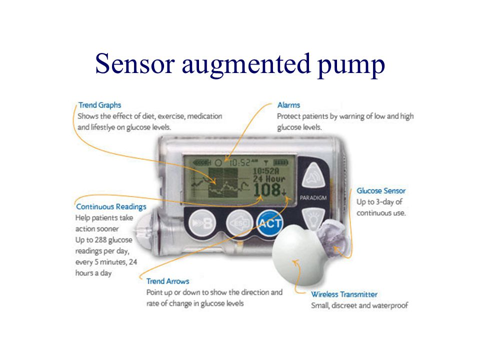 Sensor augmented pump