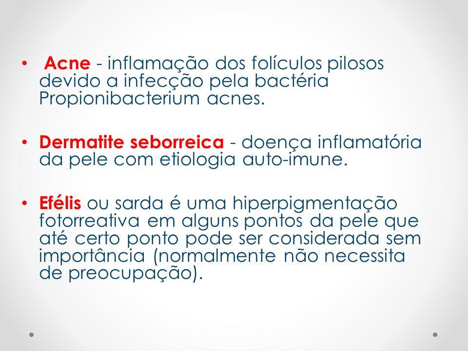 Acne - inflamação dos folículos pilosos devido a infecção pela bactéria Propionibacterium acnes.
