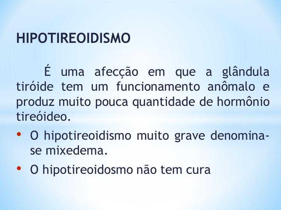 HIPOTIREOIDISMO O hipotireoidismo muito grave denomina- se mixedema.
