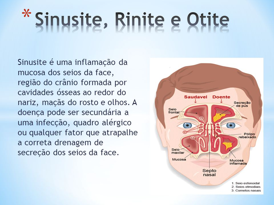 Sinusite, Rinite e Otite