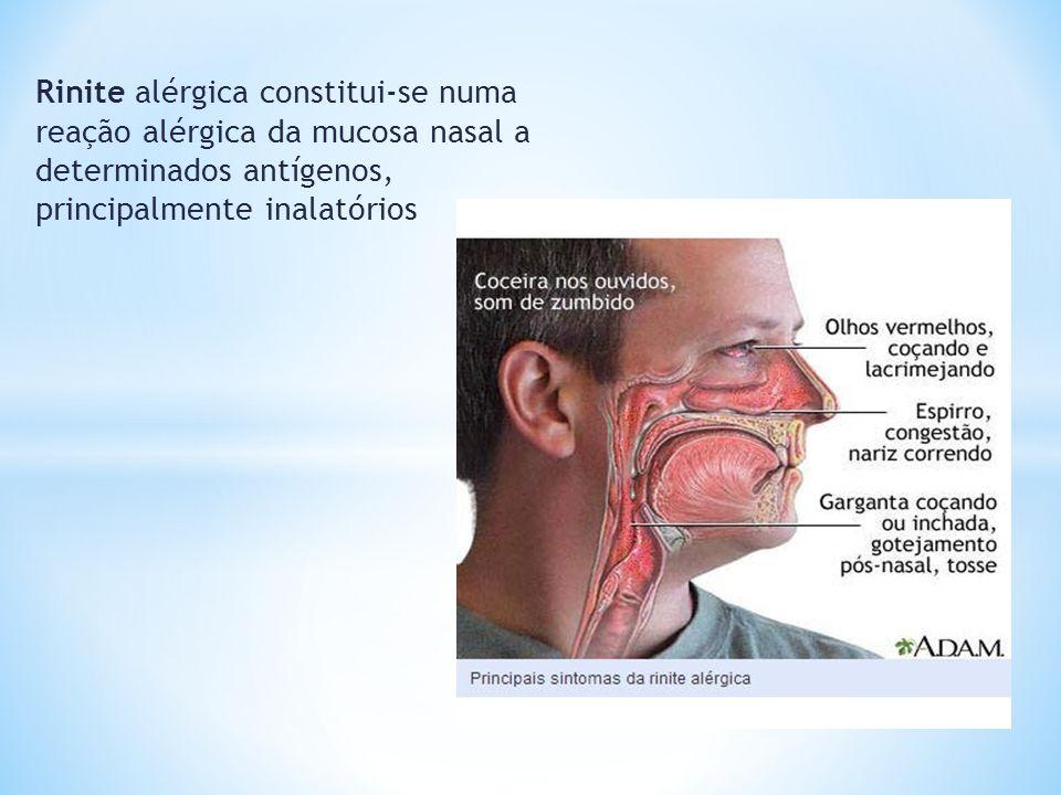Rinite alérgica constitui-se numa reação alérgica da mucosa nasal a determinados antígenos, principalmente inalatórios