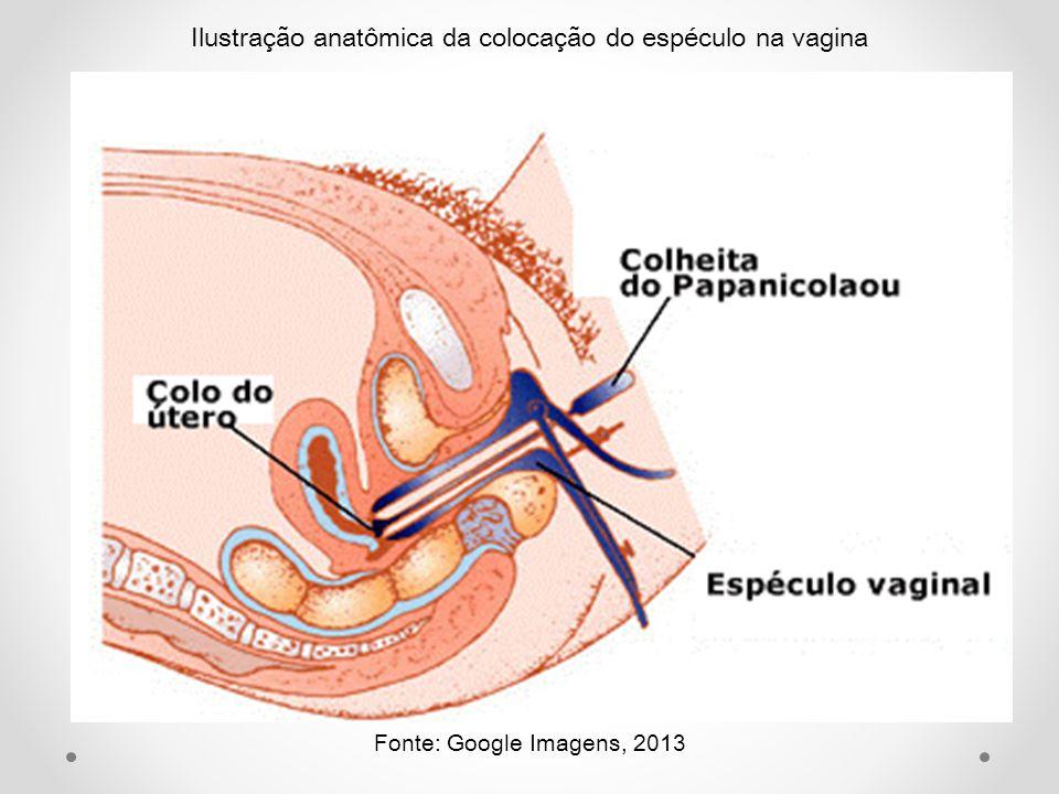 Ilustração anatômica da colocação do espéculo na vagina