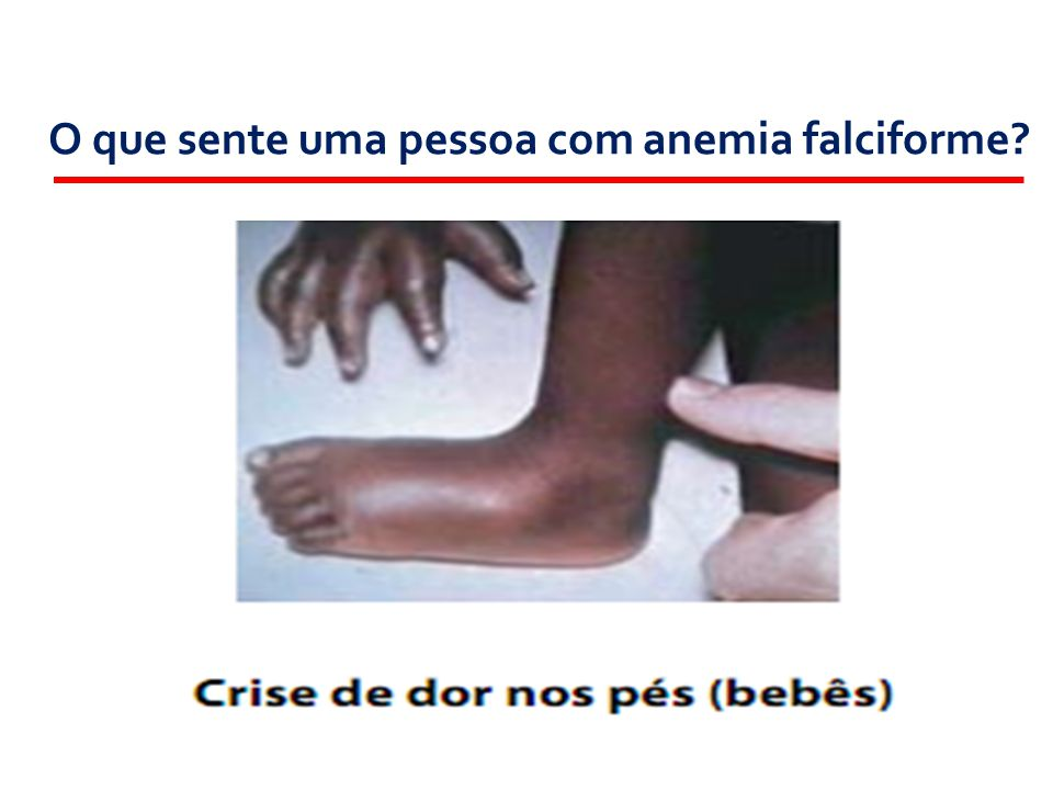 O que sente uma pessoa com anemia falciforme