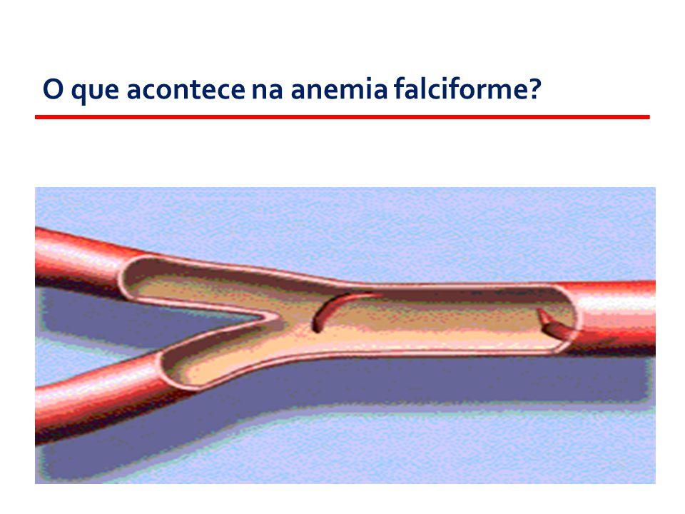 O que acontece na anemia falciforme