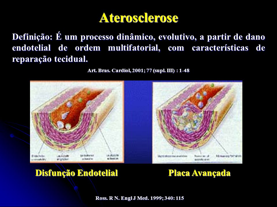 Art. Bras. Cardiol, 2001; 77 (supl. III) : 1-48