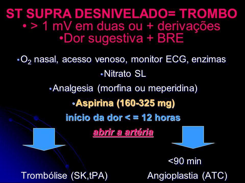 ST SUPRA DESNIVELADO= TROMBO > 1 mV em duas ou + derivações