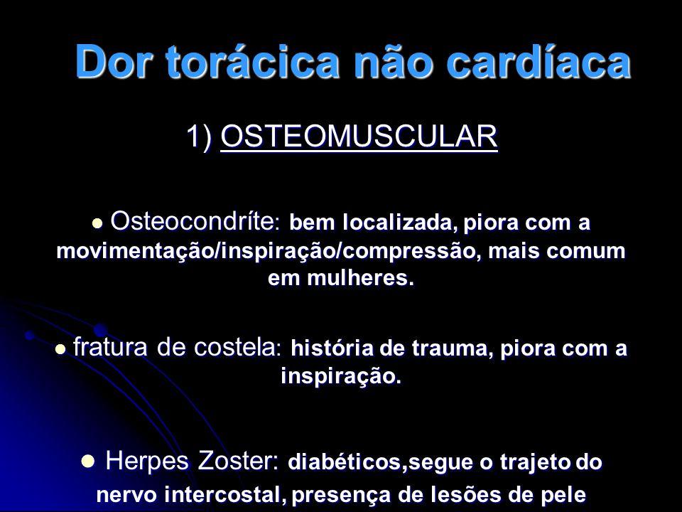 Dor torácica não cardíaca