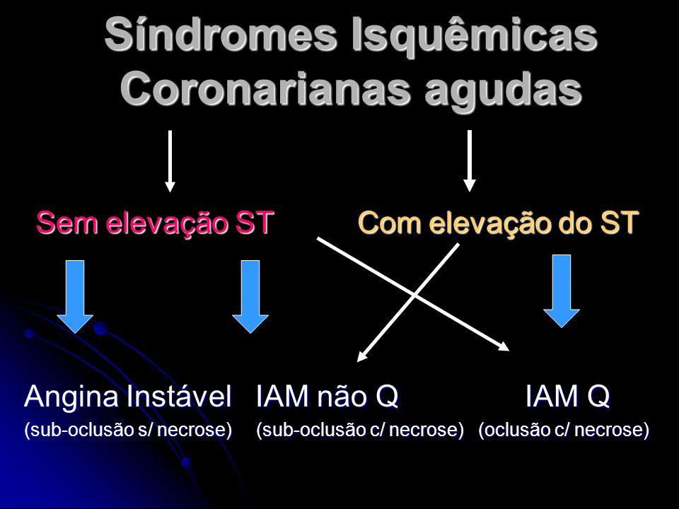 Síndromes Isquêmicas Coronarianas agudas