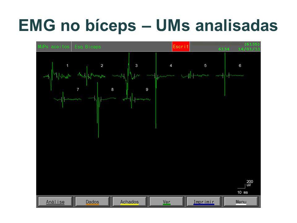 EMG no bíceps – UMs analisadas