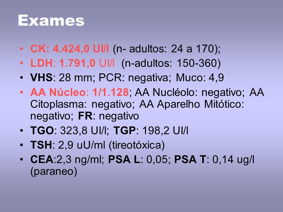 Exames CK: 4.424,0 UI/l (n- adultos: 24 a 170);