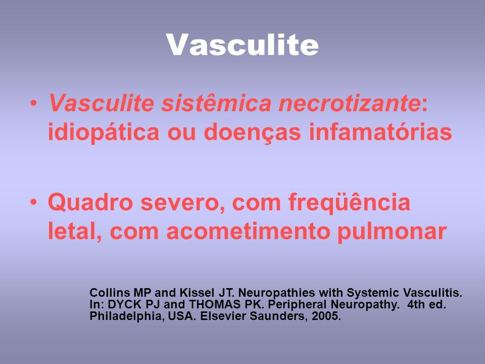 Vasculite Vasculite sistêmica necrotizante: idiopática ou doenças infamatórias. Quadro severo, com freqüência letal, com acometimento pulmonar.