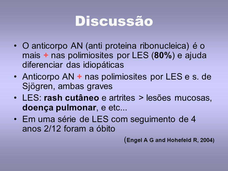 Discussão O anticorpo AN (anti proteina ribonucleica) é o mais + nas polimiosites por LES (80%) e ajuda diferenciar das idiopáticas.