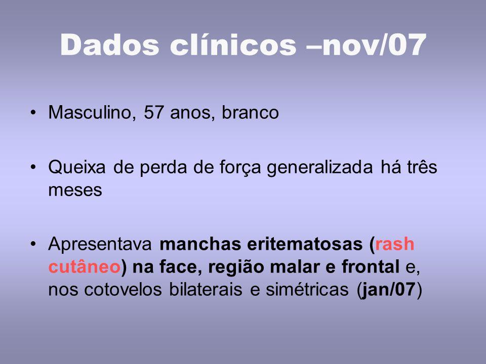 Dados clínicos –nov/07 Masculino, 57 anos, branco