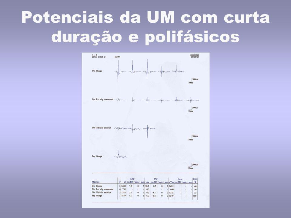 Potenciais da UM com curta duração e polifásicos